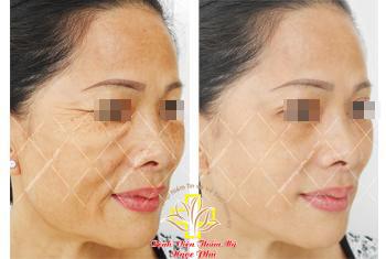 Bệnh viện Ngọc Phú ứng dụng thành công phương pháp căng da không đau - 3
