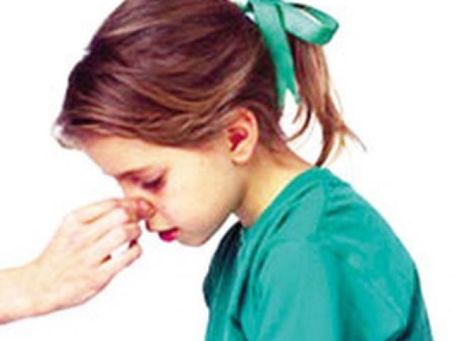 Bệnh ung thư nào có triệu chứng chảy máu mũi, chảy máu chân răng?