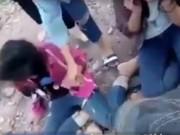 Giáo dục - du học - Nữ sinh bị đánh chảy máu mắt vì không trả lời tin nhắn qua facebook