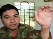 Nam thanh niên bị chém đứt gân tay vì bênh em họ