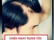 """Tin tức sức khỏe - Tuyệt chiêu """"dọn sạch"""" nhờn và nỗi lo rụng tóc kéo dài"""