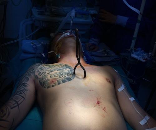 Hy hữu: Thanh sắt xiên cá đâm thủng 6 lỗ trên tim, vẫn sống - ảnh 1