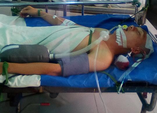 Tai nạn khó tin khi nằm võng ngày mùng 3 Tết - 1
