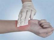 Sức khỏe đời sống - Mẹo hay dễ làm: Mẹo cầm máu vết thương