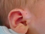 Sức khỏe đời sống - Sưng nửa mặt chỉ vì lỗ hở bằng đầu tăm ở tai