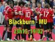 "Blackburn - MU: Cẩn thận  "" gai hoa hồng """