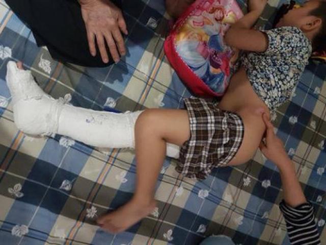 """Vụ HS gãy chân ở trường: """"Kiên bị gãy đôi xương đùi, đau đớn tột cùng"""""""