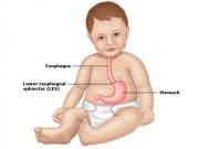 Tin tức sức khỏe - Phải làm sao khi con hỏng hệ tiêu hóa vì biếng ăn kéo dài?