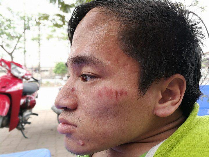 Chàng trai xương thủy tinh vượt gần 300km ra HN đăng kí hiến xác - 2