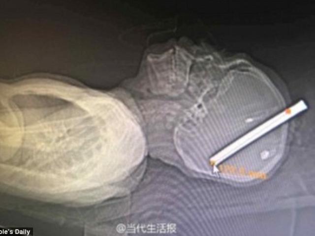 Kinh dị cảnh công nhân TQ bị thanh thép chọc xuyên hàm - 2