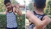 Chàng trai có cánh tay dẻo như bún