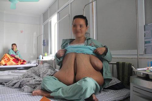 Ai có thể mắc căn bệnh giống người có bộ ngực dài đến rốn? - 1