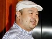 Thế giới - Triều Tiên lên tiếng về chất độc VX vụ Kim Jong-nam