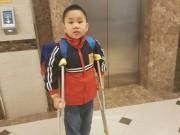 Tin tức trong ngày - HS gãy chân ở trường Nam Trung Yên bị thương tật 32%