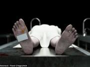 Thế giới - Não người vẫn còn sống 10 phút sau khi cơ thể chết