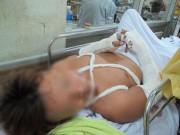 An ninh Xã hội - Hỗn chiến ở bệnh viện, đàn em Năm Cam ra tòa
