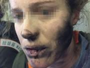 Thời trang Hi-tech - Tai nghe Bluetooth nổ trên máy bay, mặt hành khách cháy đen