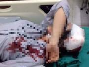 Giáo dục - du học - Nữ sinh nghi bị bạn đánh gãy tay, ngất xỉu: Sở GD&ĐT Hà Nội nói gì?