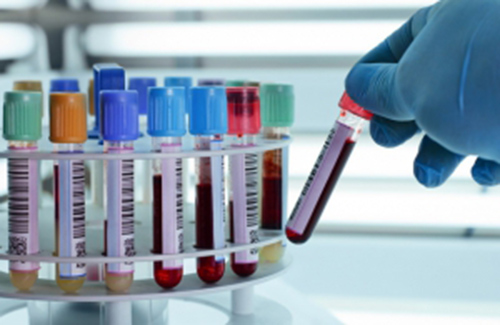 Cách đơn giản giúp hạ men gan – Phòng ngừa nguy cơ xơ gan, ung thư gan - ảnh 2