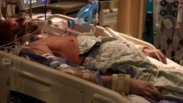 Vào viện vì đau bụng, ra viện không còn chân tay - ảnh 2