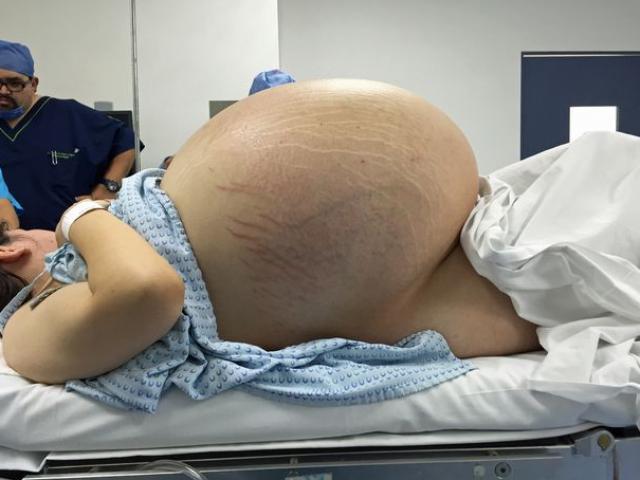 Sốc: Cô gái có khối u nang to nhất thế giới