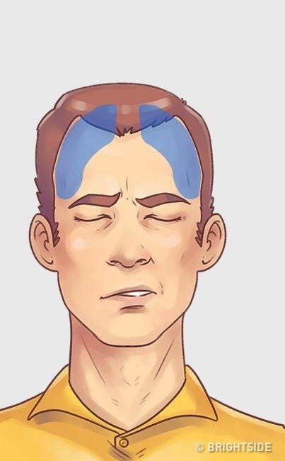 5 loại đau đầu thường gặp cần có cách chữa ngay lập tức - 4