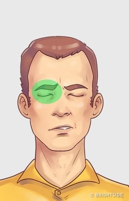 5 loại đau đầu thường gặp cần có cách chữa ngay lập tức - 5