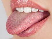 Vì sao bác sĩ khám bệnh hay xem lưỡi bệnh nhân?