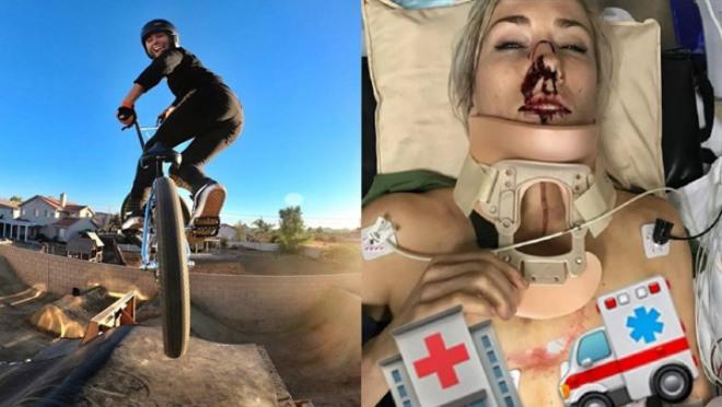 Nữ VĐV xinh đẹp gặp tai nạn thương tâm: Đổ máu & suýt mất mạng 1