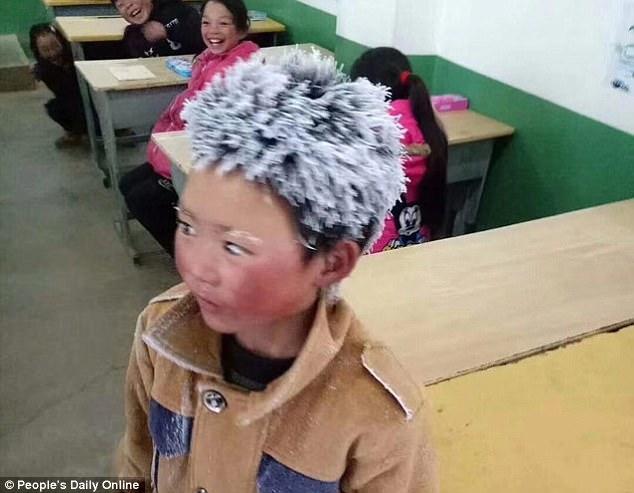 Cậu bé TQ bị đóng băng toàn bộ tóc vì trời giá rét