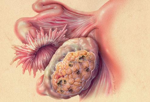 Dấu hiệu sớm phát hiện ung thư buồng trứng - 6