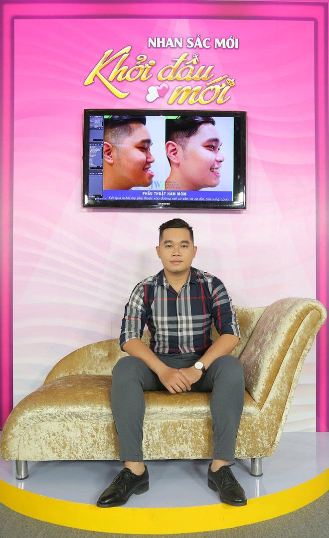 Ca sĩ Don Nguyễn ngỡ ngàng vì chàng móm quá đẹp trai - 5