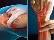 Tin tức sức khỏe - Viêm xương khớp thoái hóa gây đau đớn: Bệnh nhân đồng loạt đón nhận tin vui!
