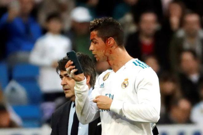 Tin HOT bóng đá tối 27/1: Bị thương mặt, Ronaldo vẫn tin mình đẹp trai 1