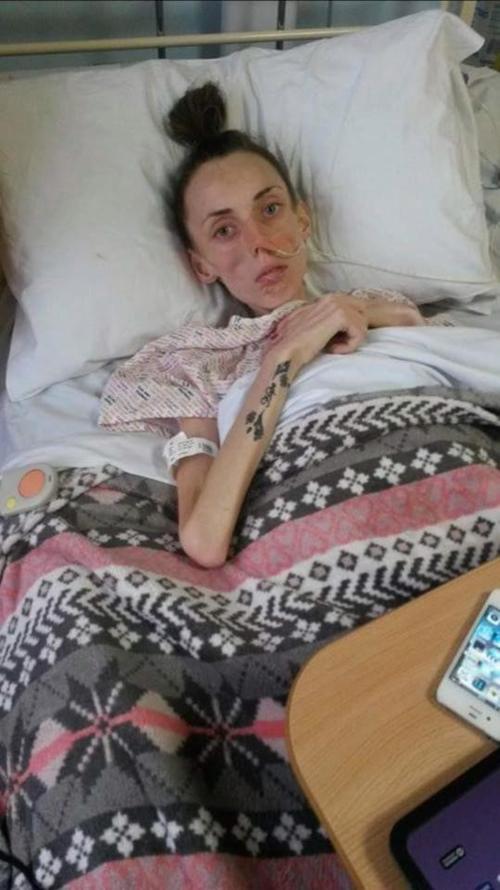 Bộ xương khô hồi phục kỳ diệu sau khi suýt chết vì cố giảm cân - 5