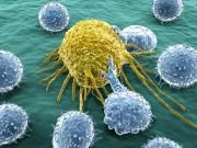 Sức khỏe đời sống - Hoàn toàn có thể phòng tránh ung thư cổ tử cung nếu biết và làm theo những điều sau
