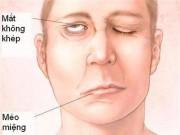 Tin tức sức khỏe - Tai biến: Bệnh nhân hồi phục sức sống nhờ phương pháp từ DSM Thuỵ Sỹ