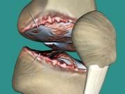 Tin tức sức khỏe - Đau nhức xương khớp dùng nhiều cách không khỏi: Mẹo nhỏ này sẽ gây bất ngờ!