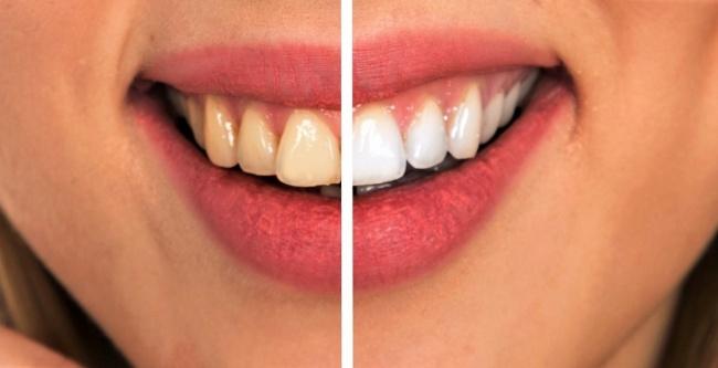 8 cách đơn giản đẩy lùi bệnh sâu răng một cách tự nhiên nhất - 5