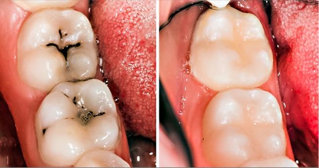 8 cách đơn giản đẩy lùi bệnh sâu răng một cách tự nhiên nhất - 6