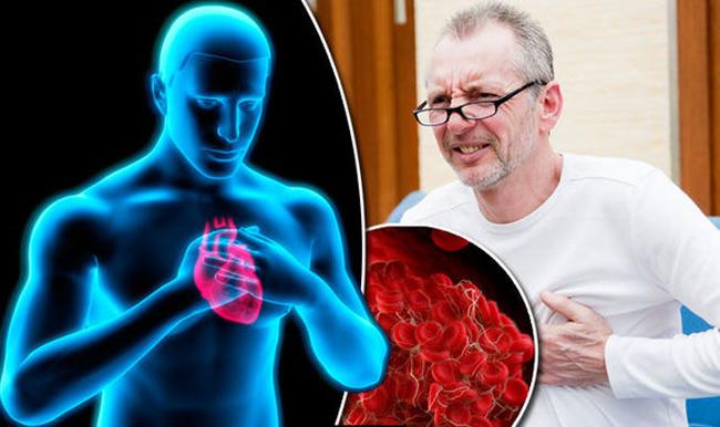 Dấu hiệu đơn giản cảnh báo cơ thể đang gặp nguy hiểm vì có cục máu đông