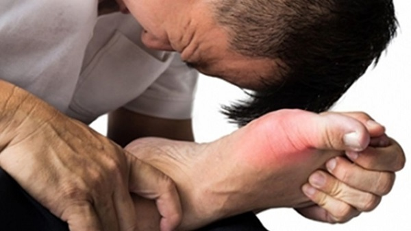 Bệnh gout là gì? Nguyên nhân và cách chữa nhanh nhất - 2