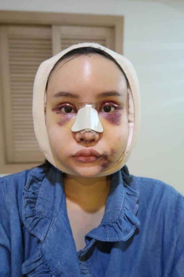 """Cô gái Thái """"đập mặt xây lại"""" chịu đau đớn hàng tháng trời - 3"""