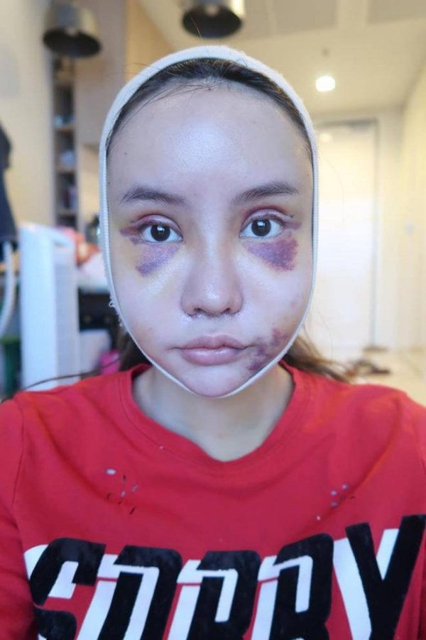 """Cô gái Thái """"đập mặt xây lại"""" chịu đau đớn hàng tháng trời - 4"""