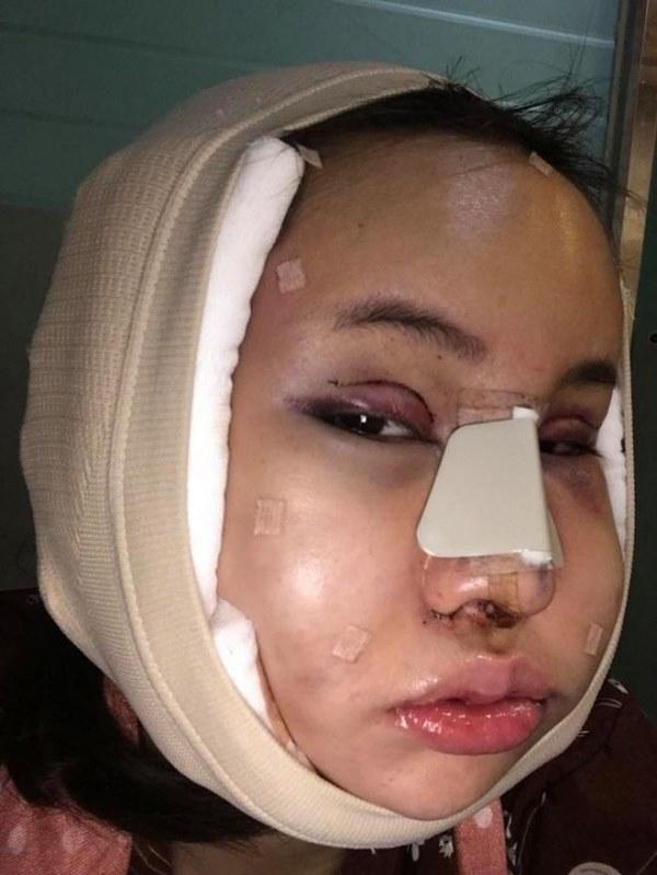 """Cô gái Thái """"đập mặt xây lại"""" chịu đau đớn hàng tháng trời - 2"""