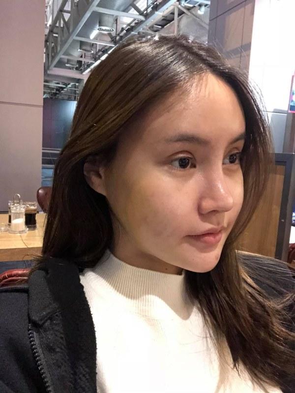 """Cô gái Thái """"đập mặt xây lại"""" chịu đau đớn hàng tháng trời - 7"""