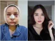 """Làm đẹp - Cô gái Thái """"đập mặt xây lại"""" chịu đau đớn hàng tháng trời"""
