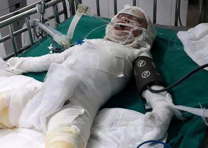 Thương tâm: Bé gái tử vong do ngã vào hố vôi