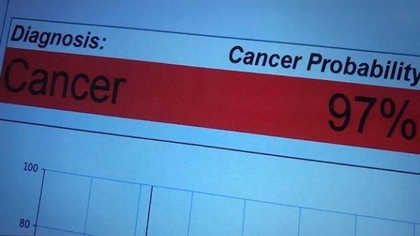 """""""Bút ung thư"""" phát hiện ra bệnh ung thư trong chỉ 20 giây - 2"""