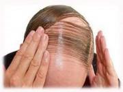 Hồi sinh tóc vùng hói chỉ nhờ tinh dầu hoa bưởi